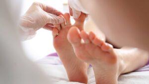 Home Remedies to Get Rid of Ingrown Toenail Pain